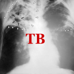 The Influence of Smoking on Pulmonary Tuberculosis in Diabetic and Non-Diabetic Patients