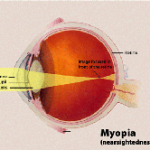 Incidence and Progression of Myopia and Associated Factors in Urban School Children in Delhi
