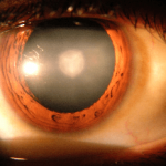 Cataract Surgery Visual Outcomes and Associated Risk Factors in Secondary Level Eye Care Centers of L V Prasad Eye Institute, India