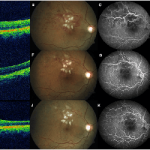 Analysis of Potential Ischemic Effect of Intravitreal Bevacizumab on Unaffected Retina in Treatment-Naïve Macular Edema Due to Branch Retinal Vein Occlusion
