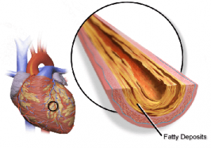 coronary-artery-plaque