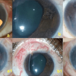 Glaucoma associated with iridocorneal endothelial syndrome in 203 Indian subjects